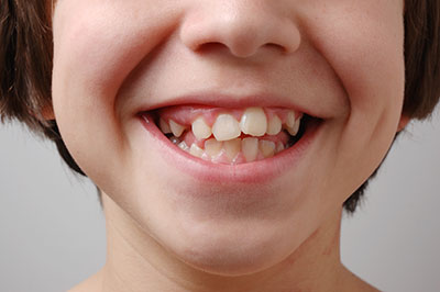 Child with Impacted Canine Teeth