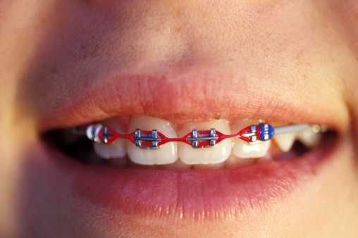 Child with colored braces